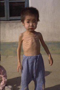 A severely malnourished boy toddler stands outside the Oop Nursery in the Centre of Pyongsan County in the town of Pyongsan in North Hwanghae province, near Pyongyang, the capital. In addition to malnutrition, causing a general listlessness, the children at this centre suffer from inadequate hygiene due to the lack of soap and other basic supplies. The Democratic People's Republic (DPR) of Korea continues to suffer acute food shortages in 1997, the result of a weakened economy and the 1995 floods which displaced 100,000 families and affected 5.2 million people. With the near depletion of Government stockpiles, UNICEF has issued a special appeal to donors for high energy milk (HEM) - a combination of milk powder, suger, oil and mineral salts - to rehabilitate acutely malnourished children. In addition, other supplementary feeding programmes and vaccinations are continuing, as well as the provision of multi-vitamin tablets for pregnant and lactating mothers, and seeds or seedlings for nursery gardens. UNICEF is also cooperating with international NGOs and the World Food Programme (WFP) to provide food for the 2.4 million children under six years of age.