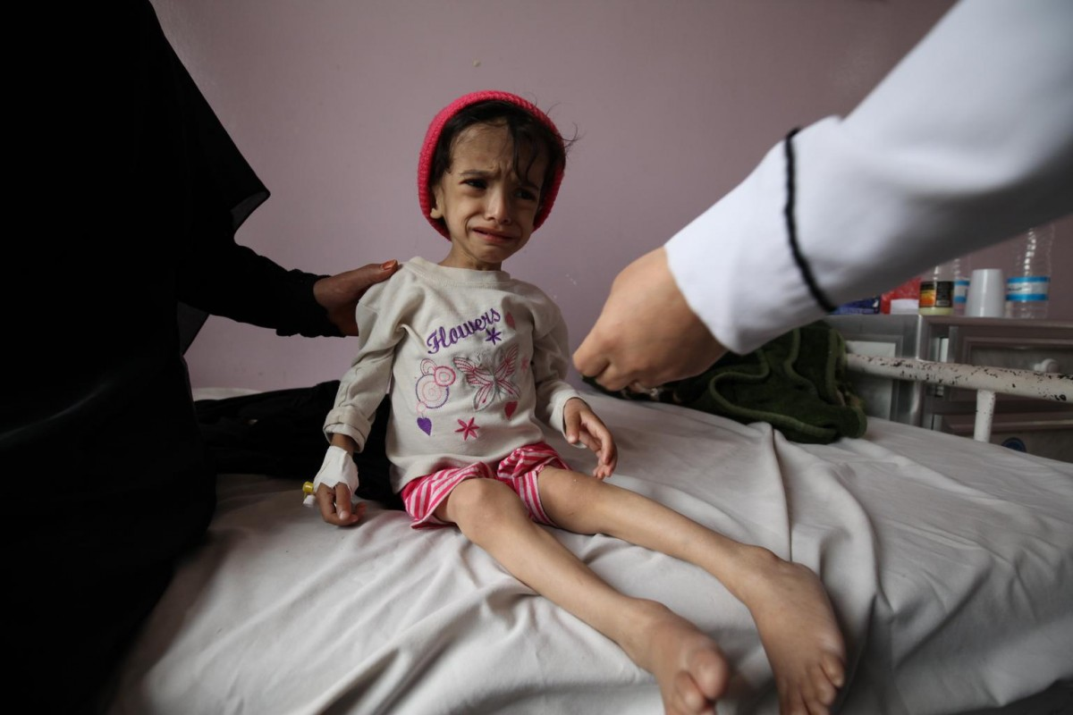"On 30 July 2015, Hanadi, 2 years and 8 months old, and weighs a paltry 7 kilograms. She is malnourished, weak and can't walk. She is admitted at Sabeen hospital in Yemen's capital, Sana'a for treatment. Ali Hanadi Hussein is 2 years and 8 months old, and weighs a paltry 7 kilograms now. She is malnourished, weak and can't walk. Her mother says since the war escalated the family mainly survived on bread whenever they find it. Hanadi and her three siblings started to become frail. Then Hanadi got diarhoea and started vomiting. Her father is permanently disabled due to an accident at work and her mother, only a housewife, couldn't find any source of food. They survived on handouts from neighbours and charity groups. When Hanadi's condition worsened, she decided to bring her to Sabeen hospital but left the other three older children in the village with their father. ""It is already very hard for us especially with my husband's condition, living on charity every day, now I'm here alone with my daughter while the country is on fire. Though at Al-Sabeen Hospital we have someone who can help her, I am worried about the children and family I left behind"" – Hanadi's mother said."